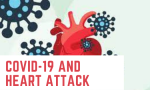 Covid-19 and Heart Attack